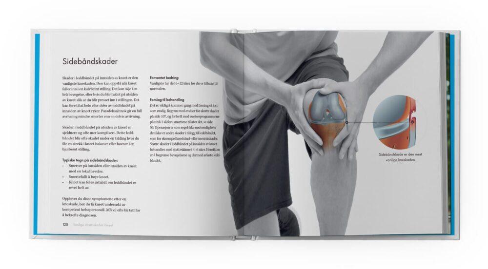 Friskt kne – sidebåndskader
